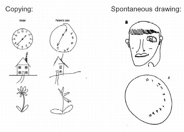 drawing-right-hemisphere