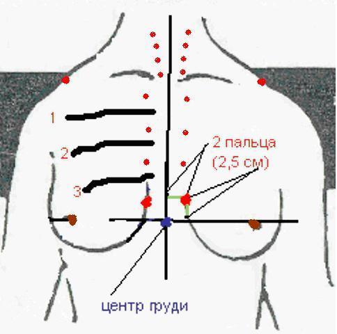 Бабаян увеличение груди