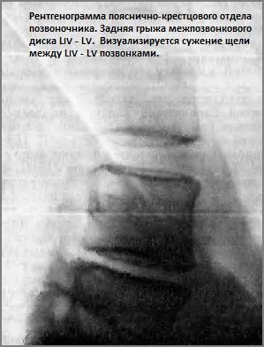 osteohondroz-30