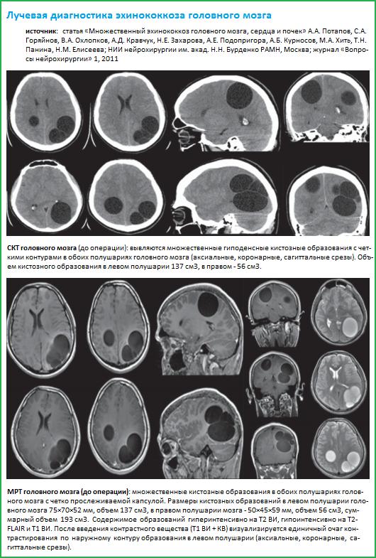 Особенности эхинококкового поражения головного мозга - Неврология