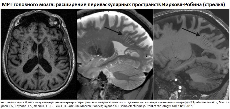 Пространства Вирхова-Робина - Неврология