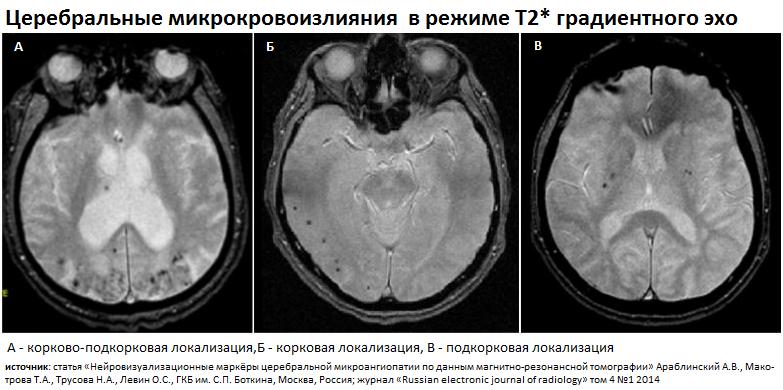 Кортикальная церебральная атрофия 1 степени лечение