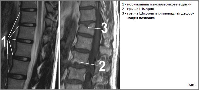 Лечение грыж шморля в грудном отделе позвоночника