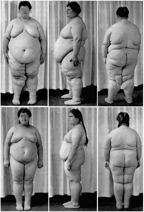 Синдром ожирения гиповентиляции