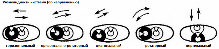 Нистагм - Неврология