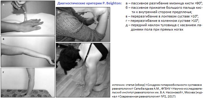 Синдром гипермобильности суставов картинки настрои сытина для коленных суставов