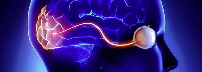 Рассеянный склероз: нарушение зрительных функций - Неврология
