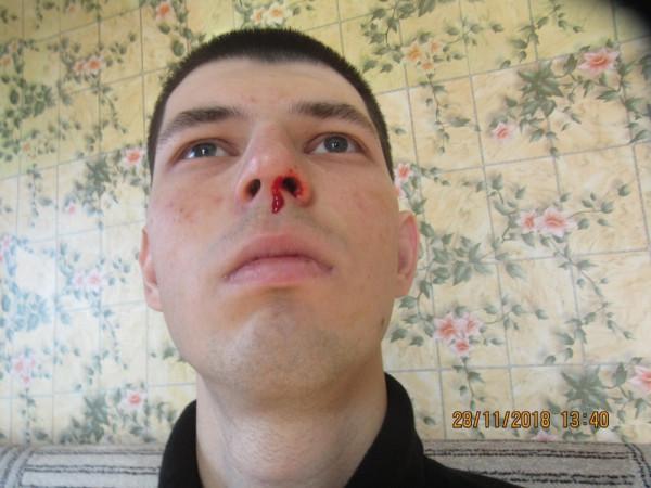 Кровотечение у Филиппа Романова.jpg