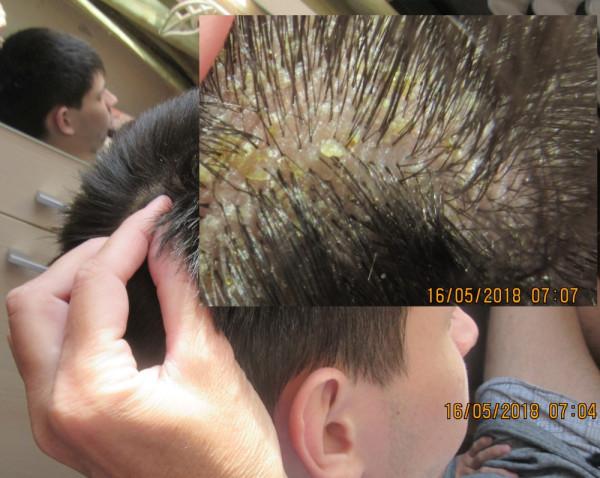 Аллергические реакции (в т.ч. - кожные) у Филиппа Романова.JPG
