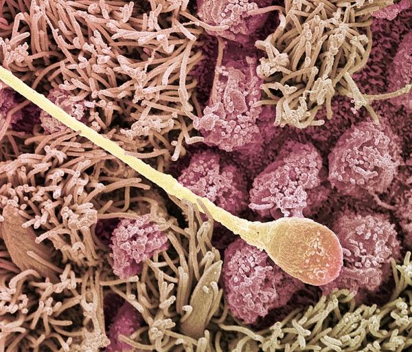 Влагалище под микромкопом фото 18-333