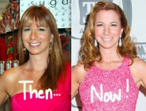 jill-zarin-plastic-surgery-now-then