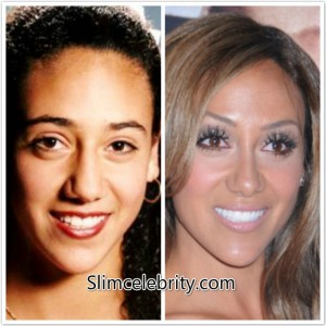Real-Housewives-Melissa-Gorga-Plastic-Surgery-Before-and-After-Photos-Fillers-Botox-Nose-Job-and-Lip-Injections-2