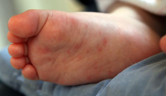аллергия на ремонт в квартире