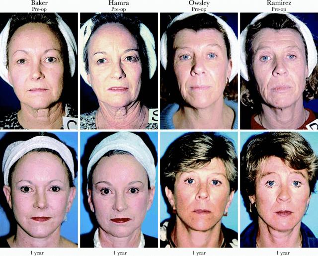 До и после пластической операции фото