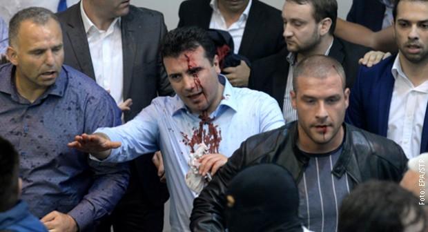 Povredjen-Zoran-Zaev