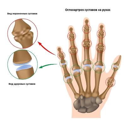 остеоартроз суставов рук