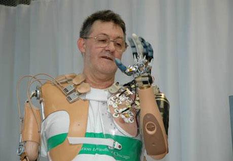 7657_large_bionicprosthetic-1