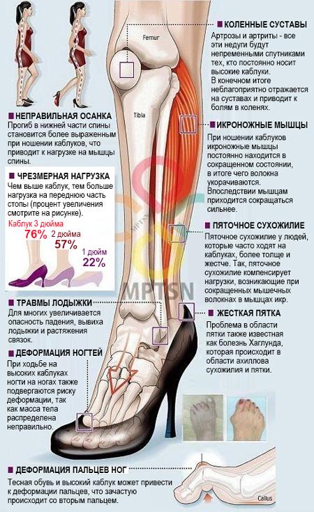 Болит колено при ходьбе на каблуках рецепт растирки суставов