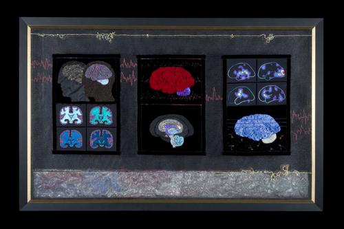 мозг4