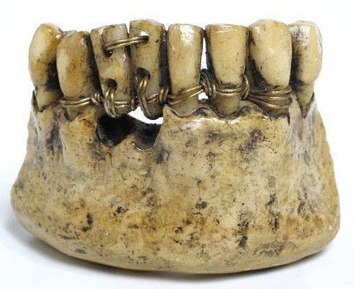 Суровая стоматология