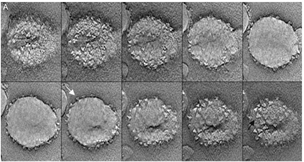 вирус вич фото под микроскопом