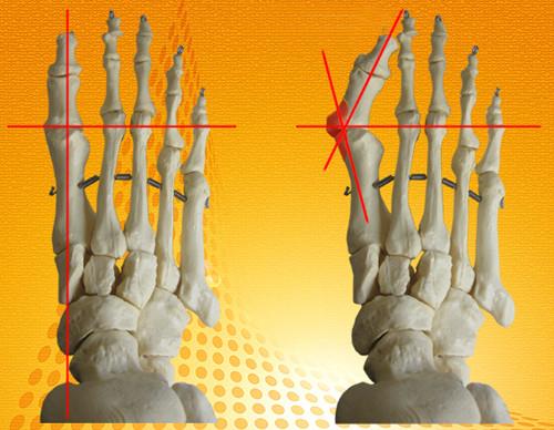 вальгусная деформация первого пальца стопы кемерово