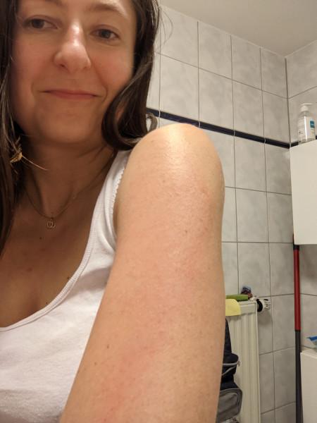 Реакция на прививку от коронавируса