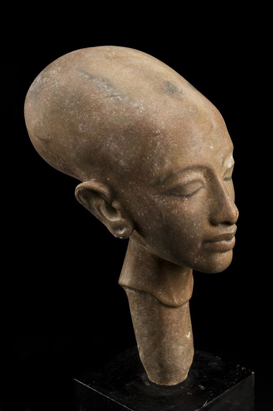 Copy_of_a_statue_showing_a_deformed_cranium,_Cairo,_Egypt,