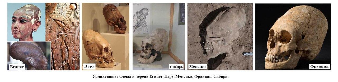 удлиннённые черепа 3