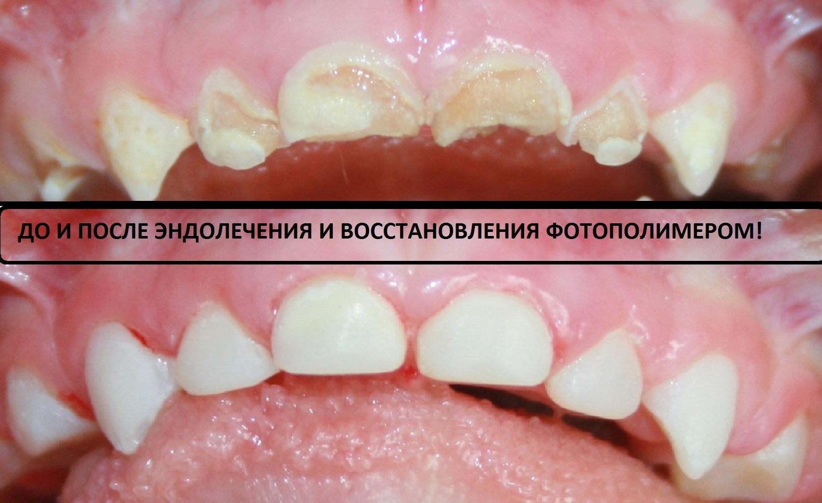 офисное отбеливание зубов что это