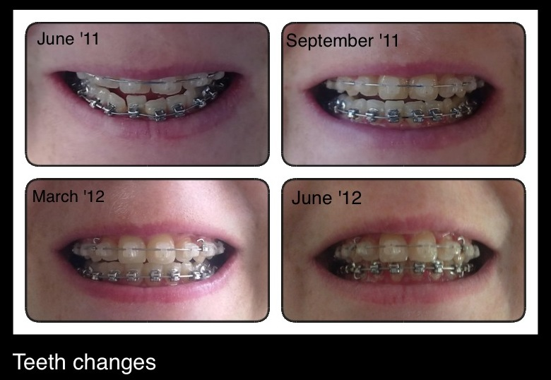 And interesting! before and after adult braces Name the