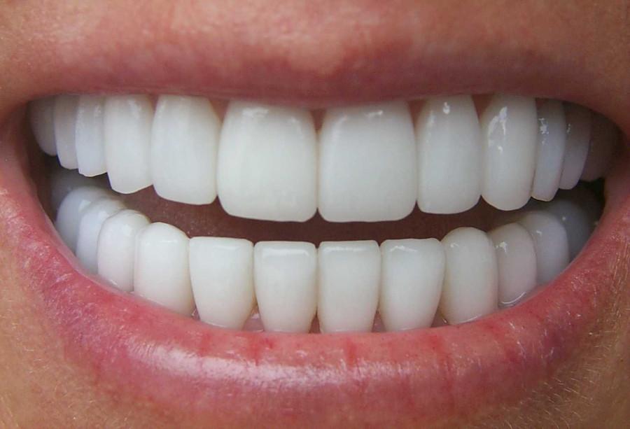 1373885388_otbelivanie-zubov-beyond-11