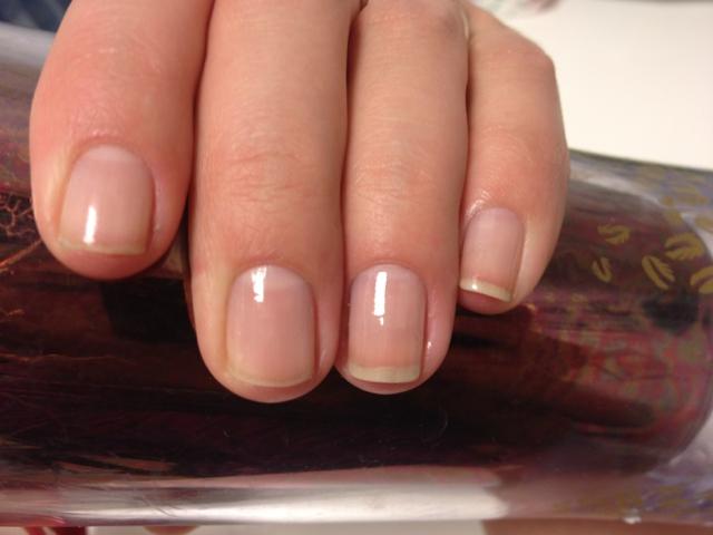 фото грязные ногти