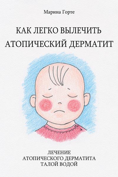 Как вы лечите атопический дерматит у ребенка