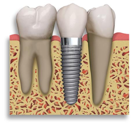 danties-implantai
