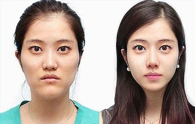 south_korea_surgery_11