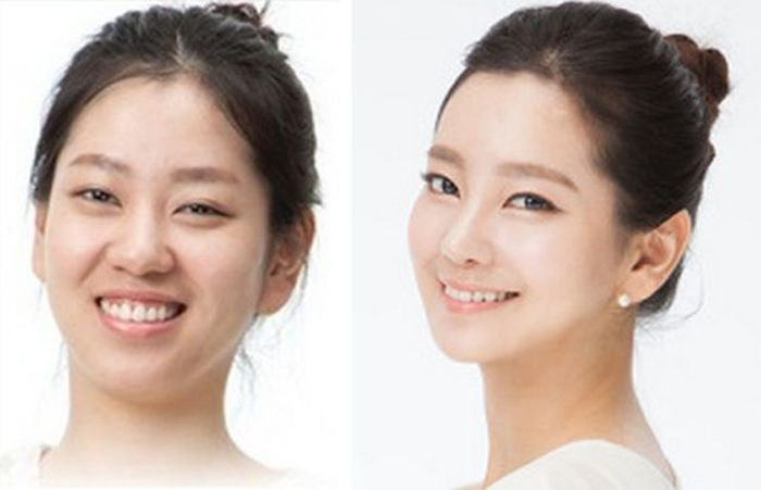 south_korea_surgery_14