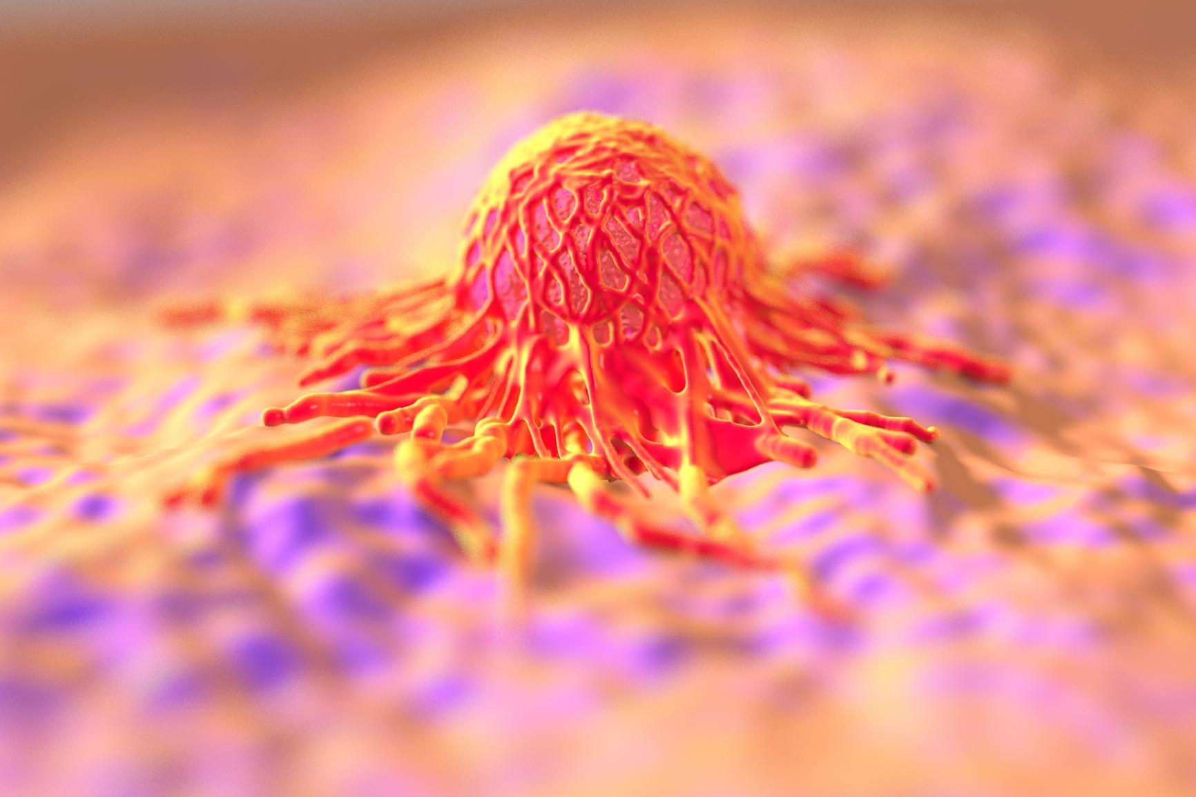 В России начали успешно лечить онкозаболевания