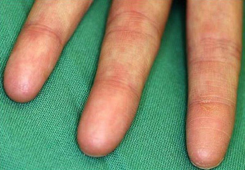Существуют ли люди без отпечатков пальцев?