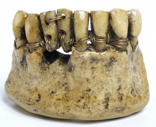 Почему от сладкого болят поврежденные зубы?