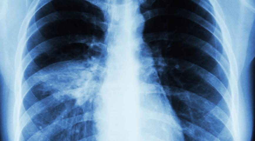 После выздоровления от Covid-19 почти у всех остаются проблемы со здоровьем Коронавирус