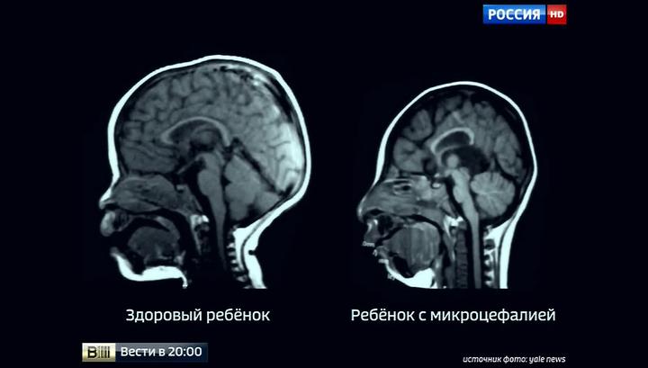 Что может болеть в животе с левой стороны ниже пупка