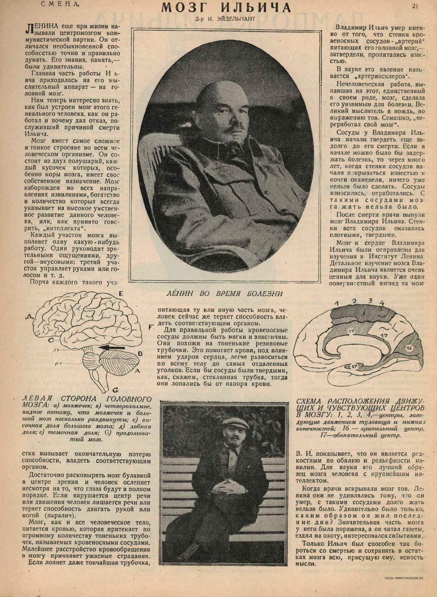 Мозг Ильича