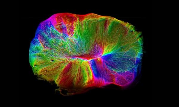 Выращенный в лаборатории миниатюрный мозг самостоятельно соединился со спинным мозгом