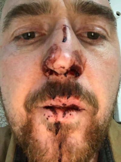 В Польше хозяин пиццерии жестоко избил украинского актера с Майдана