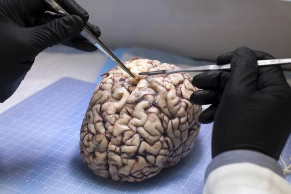 brain_creu-ru-02-640x468