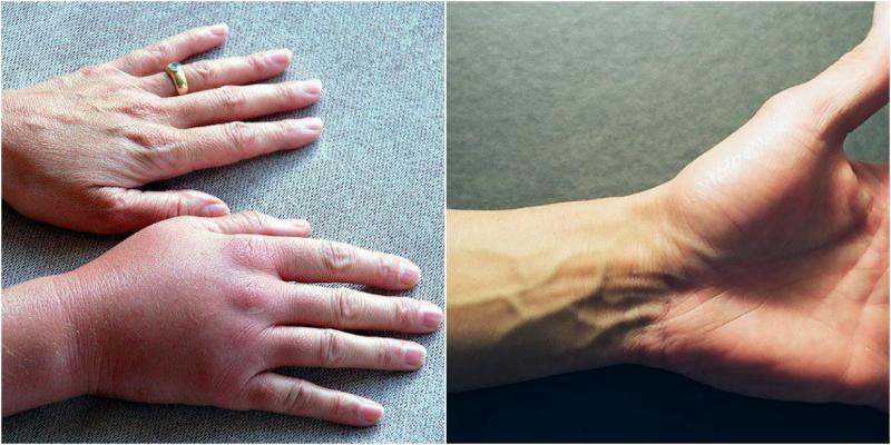 Онемение пальцев руки при сахарном диабете лечение