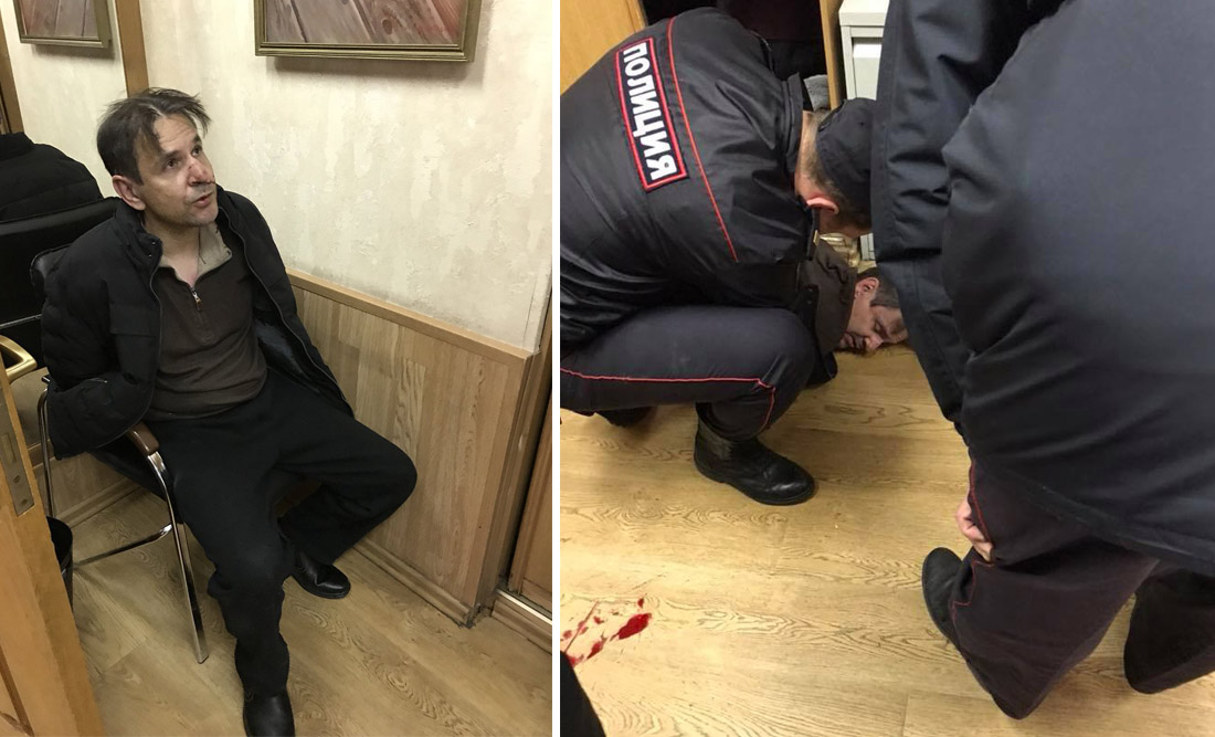 Как в России нападают с ножом на журналистов (фото).