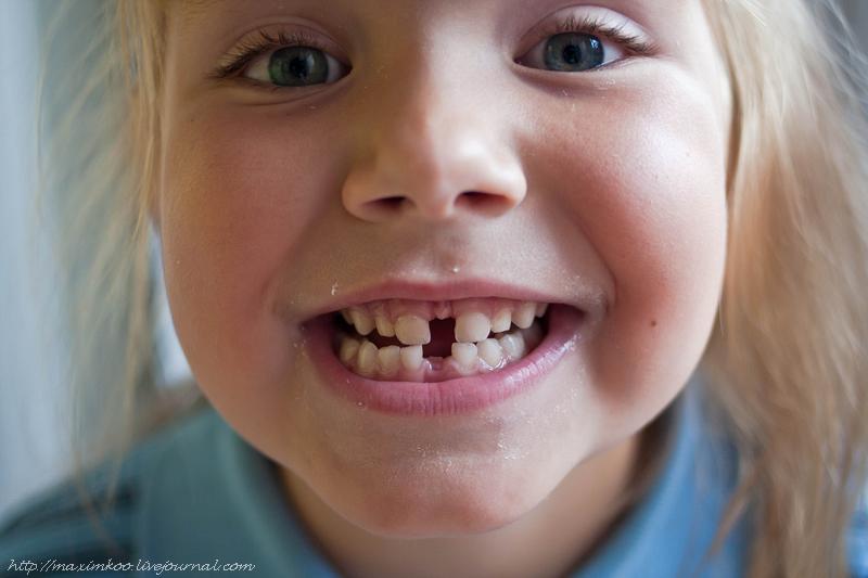 выпал первый зуб