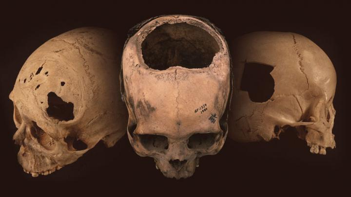Нейрохирурги инков работали качественнее своих американских коллег XIX века